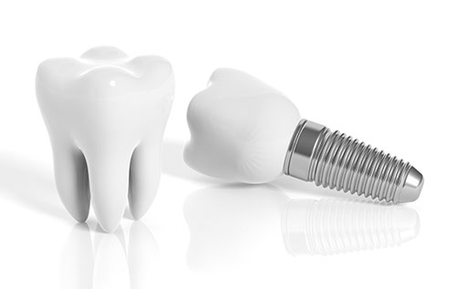 Dental implants / Pre-implant surgery
