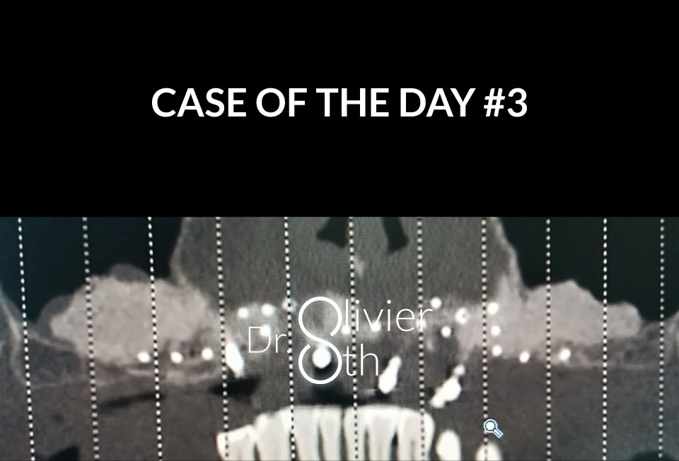 Case of the day #3