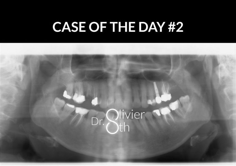 Case of the day #2